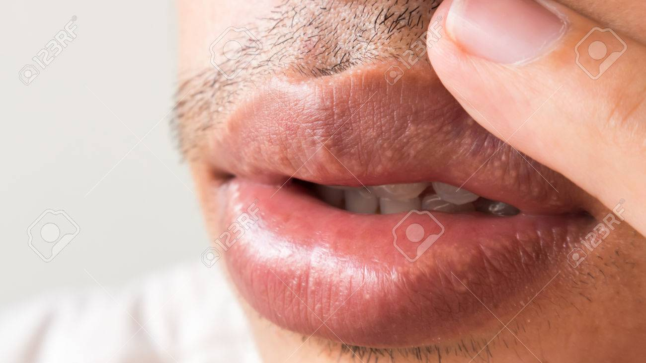 3 Ways to Remove a Mouth Ulcer - wikiHow]