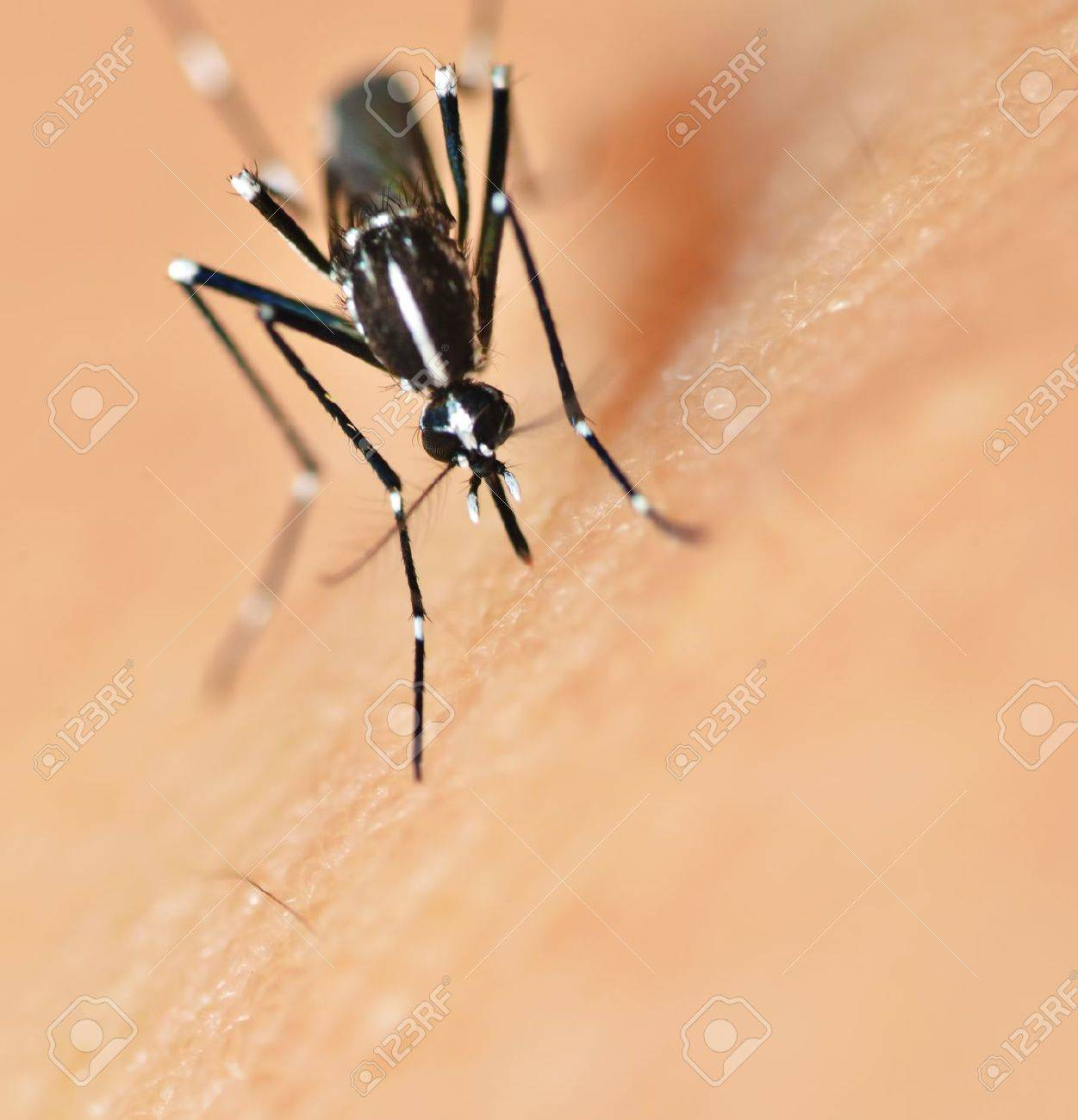 Mosquito bite on human skin Stock Photo - 11209065