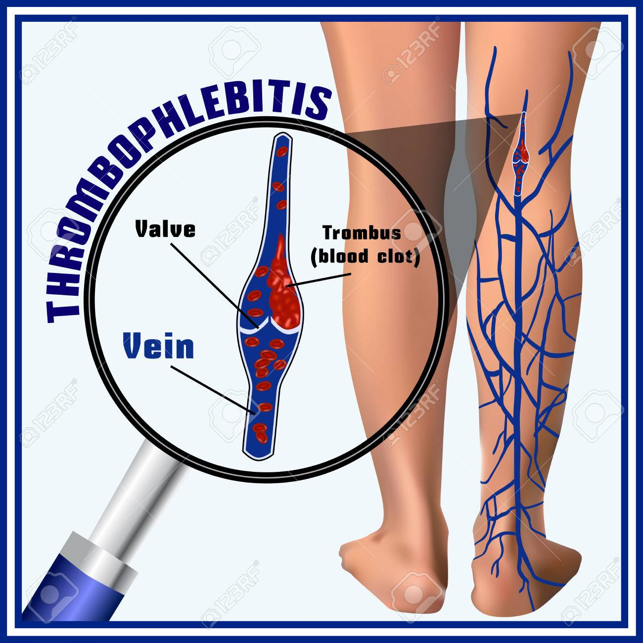 Tromboflebitis, Coágulos De Sangre En Las Venas. Embolia. Trombosis ...