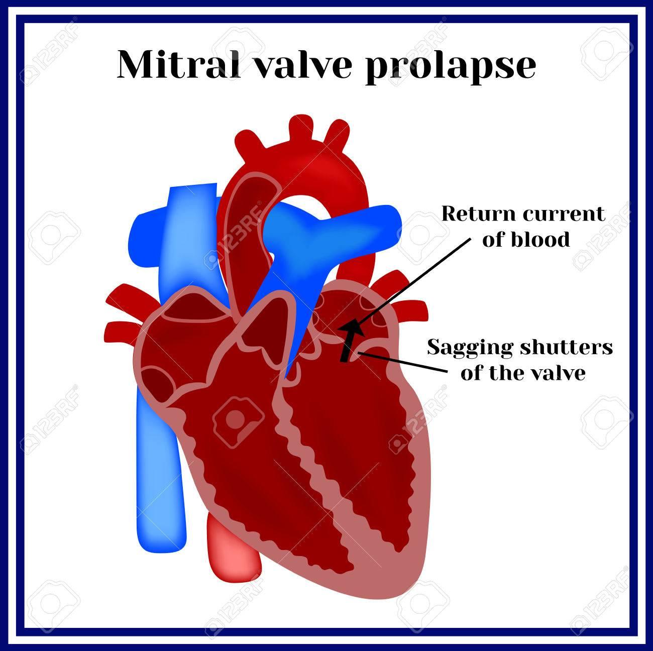 mitral valve prolapse  cardiac pathology  stock vector - 62198653