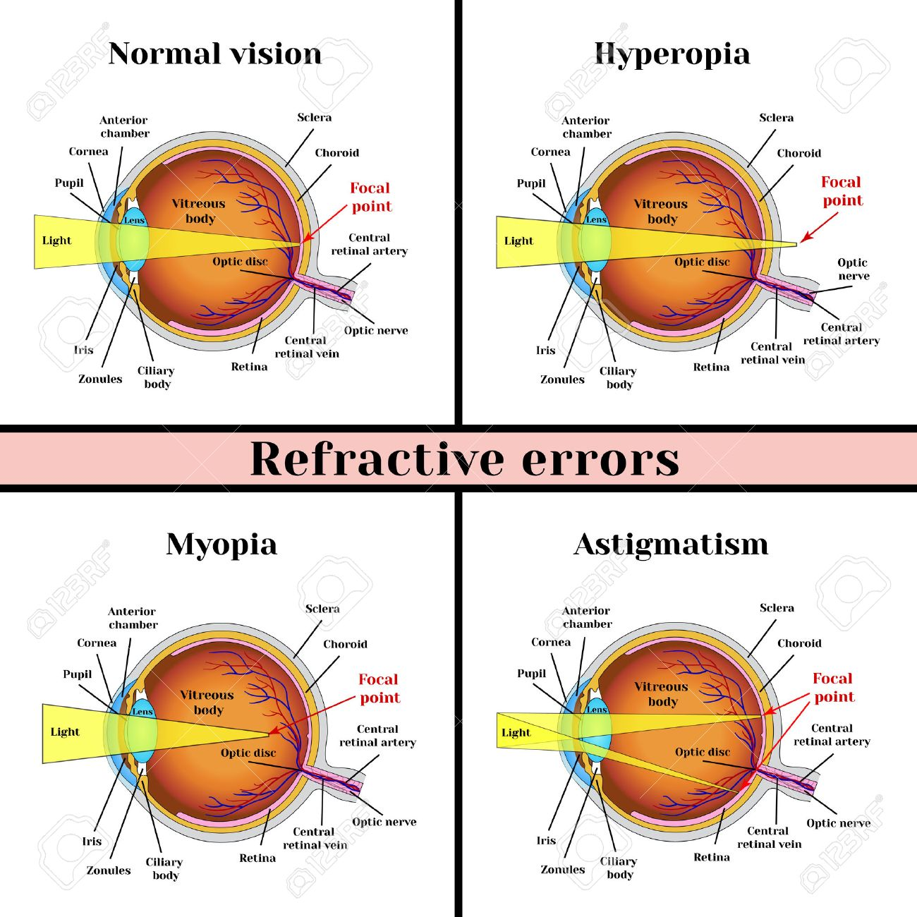 屈折異常眼球: 遠視、近視、乱視...