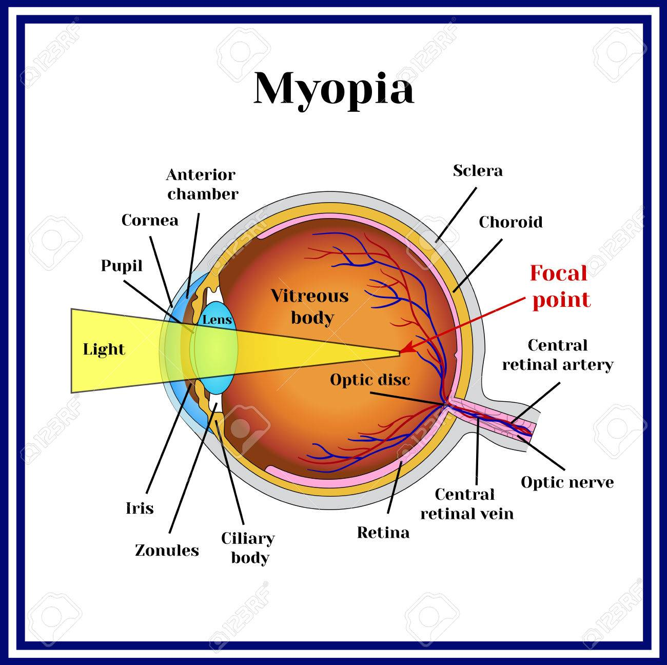 refractive errors eyeball myopia royalty free cliparts, vectors Astigmatic Error refractive errors eyeball myopia stock vector 68283535