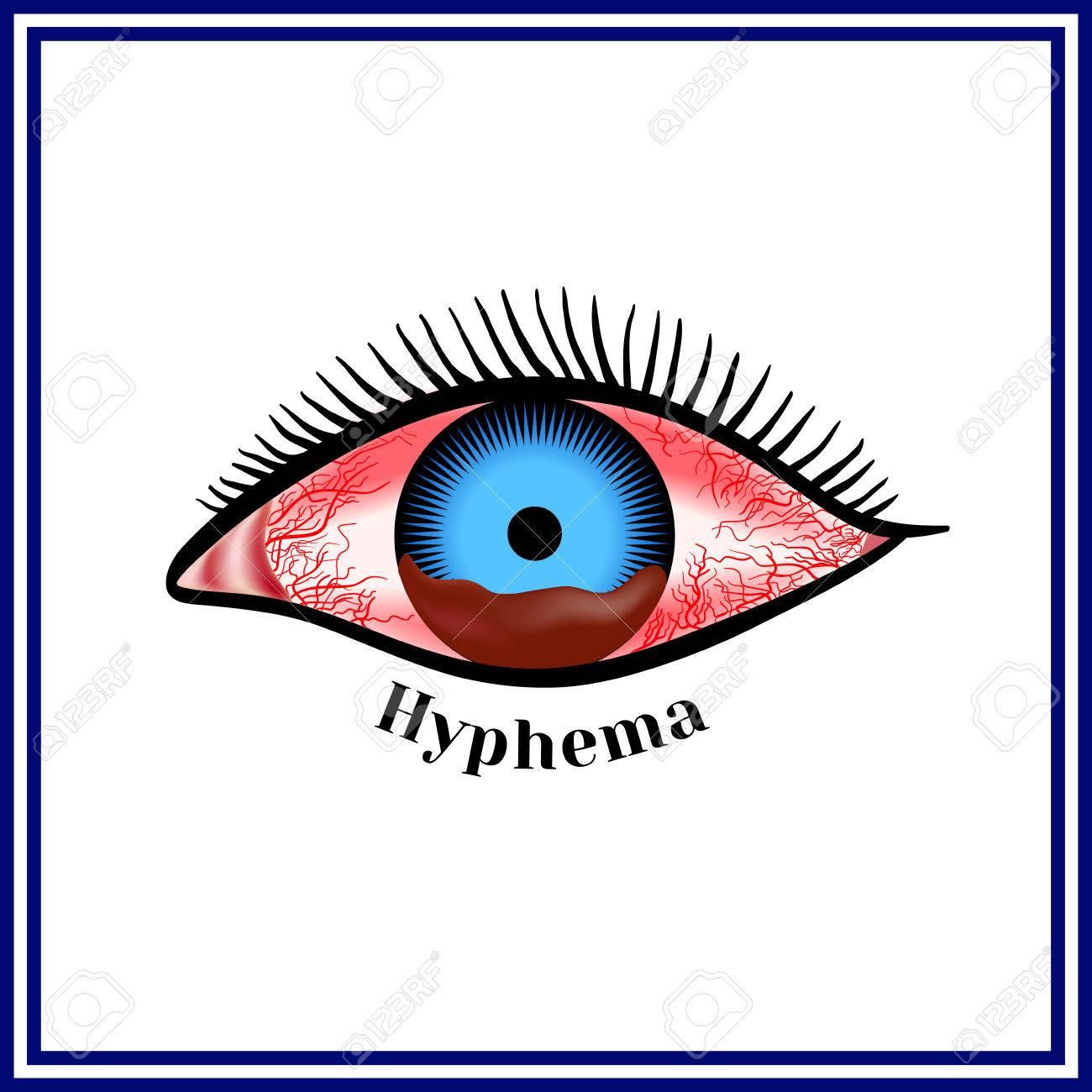 Hifema - Hemorragia En La Cámara Anterior Del Ojo. Ilustraciones ...