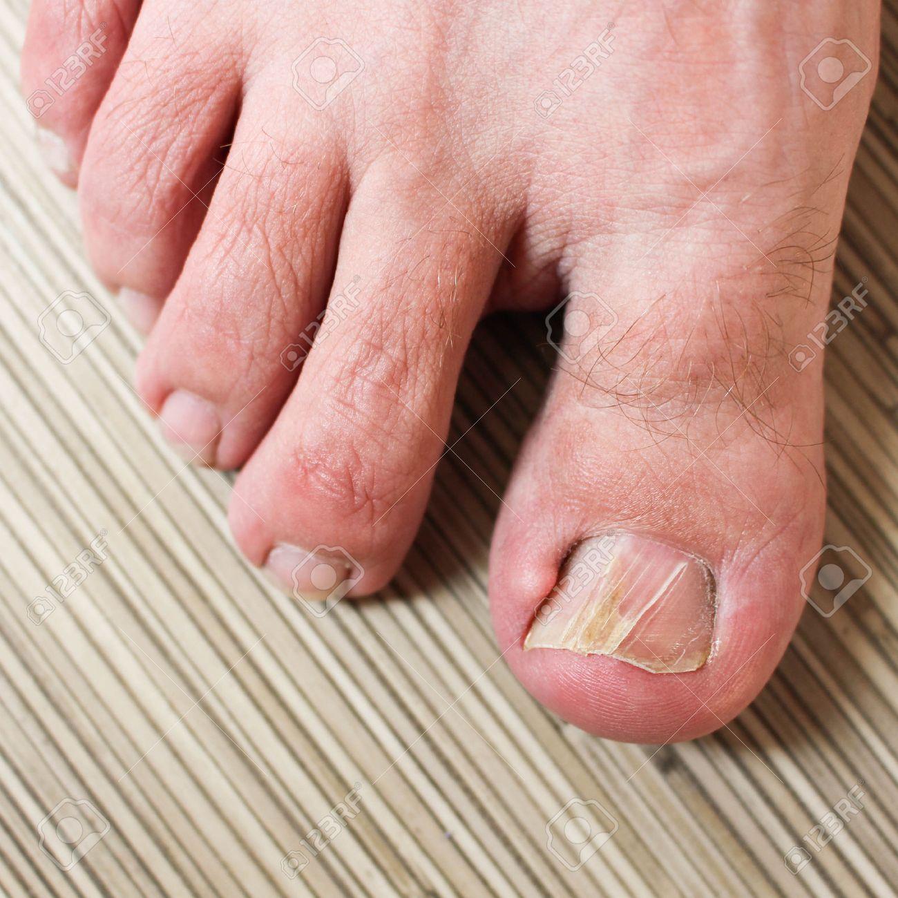 как успокоить боль от вросшего ногтя