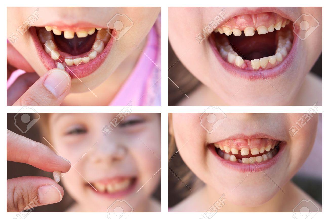 Что делать с молочным зубом после удаления