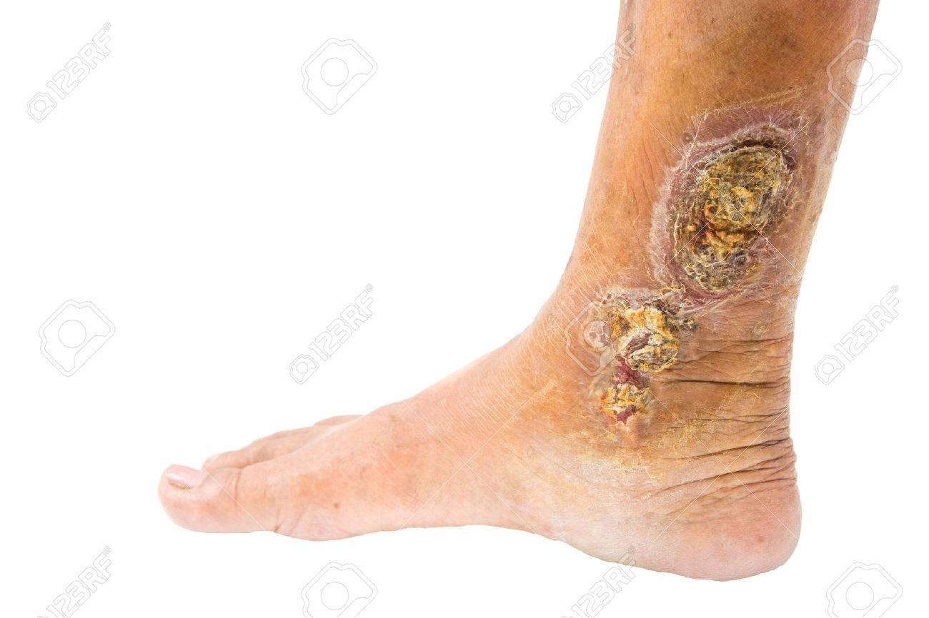 chronic venous leg ulcer - 34022857
