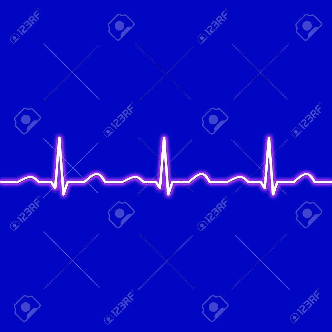 ecg waves in red on a black background Stock Photo - 12745102