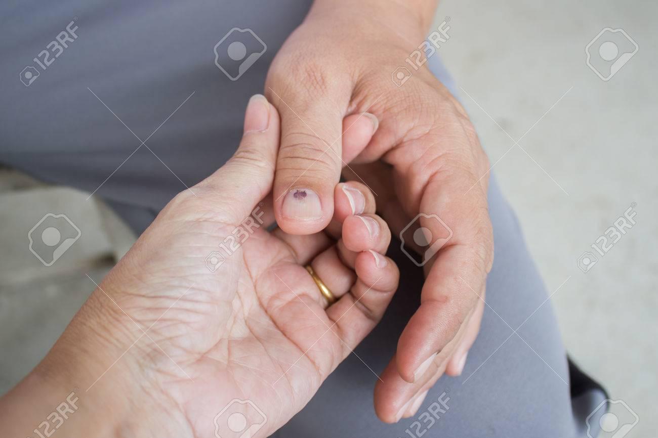 Banque dimages , femme prise main de lhomme avec longle du pouce meurtri