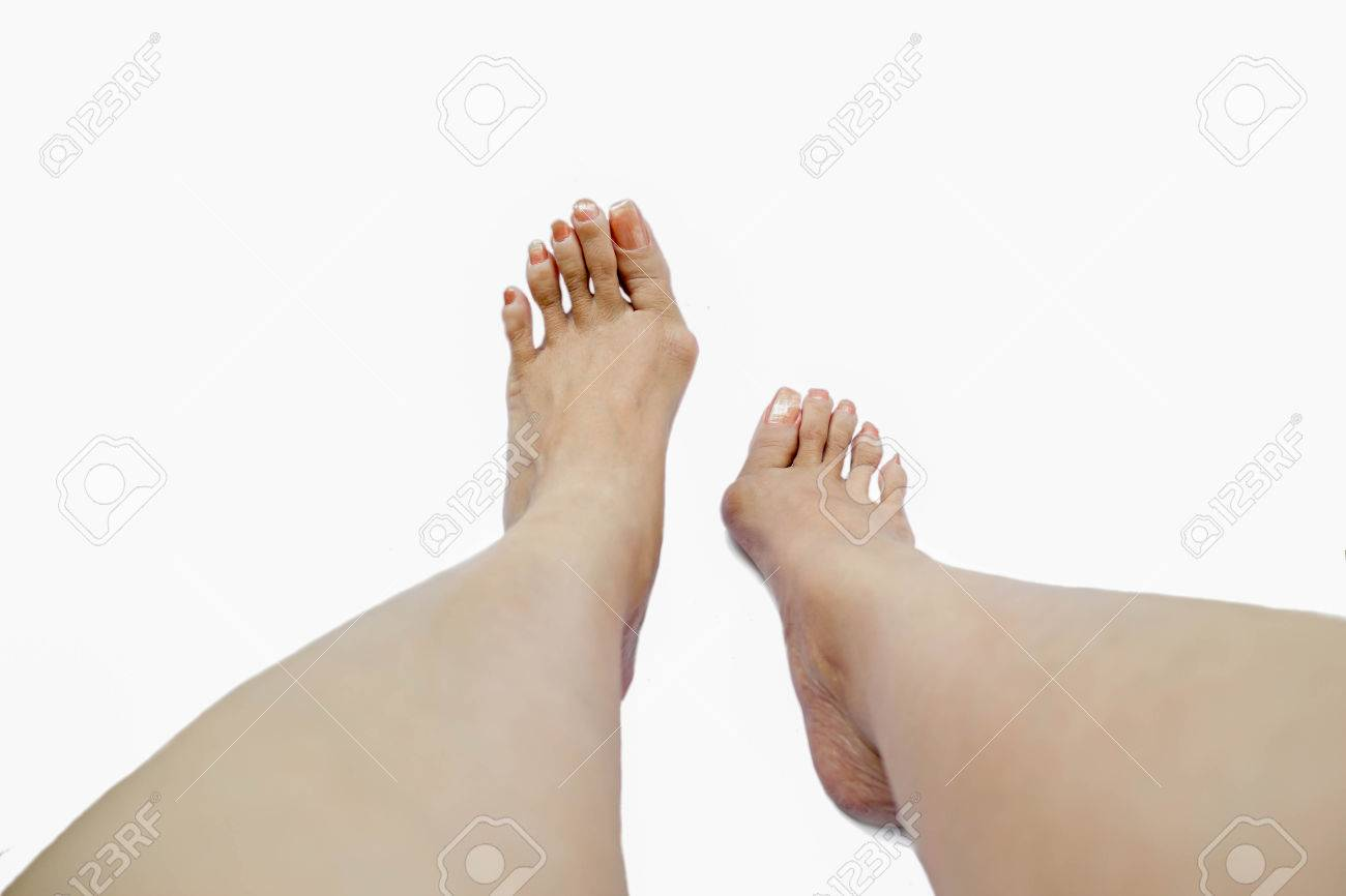 Hallux Valgus, Bunion In Foot On White Background Stock Photo ...