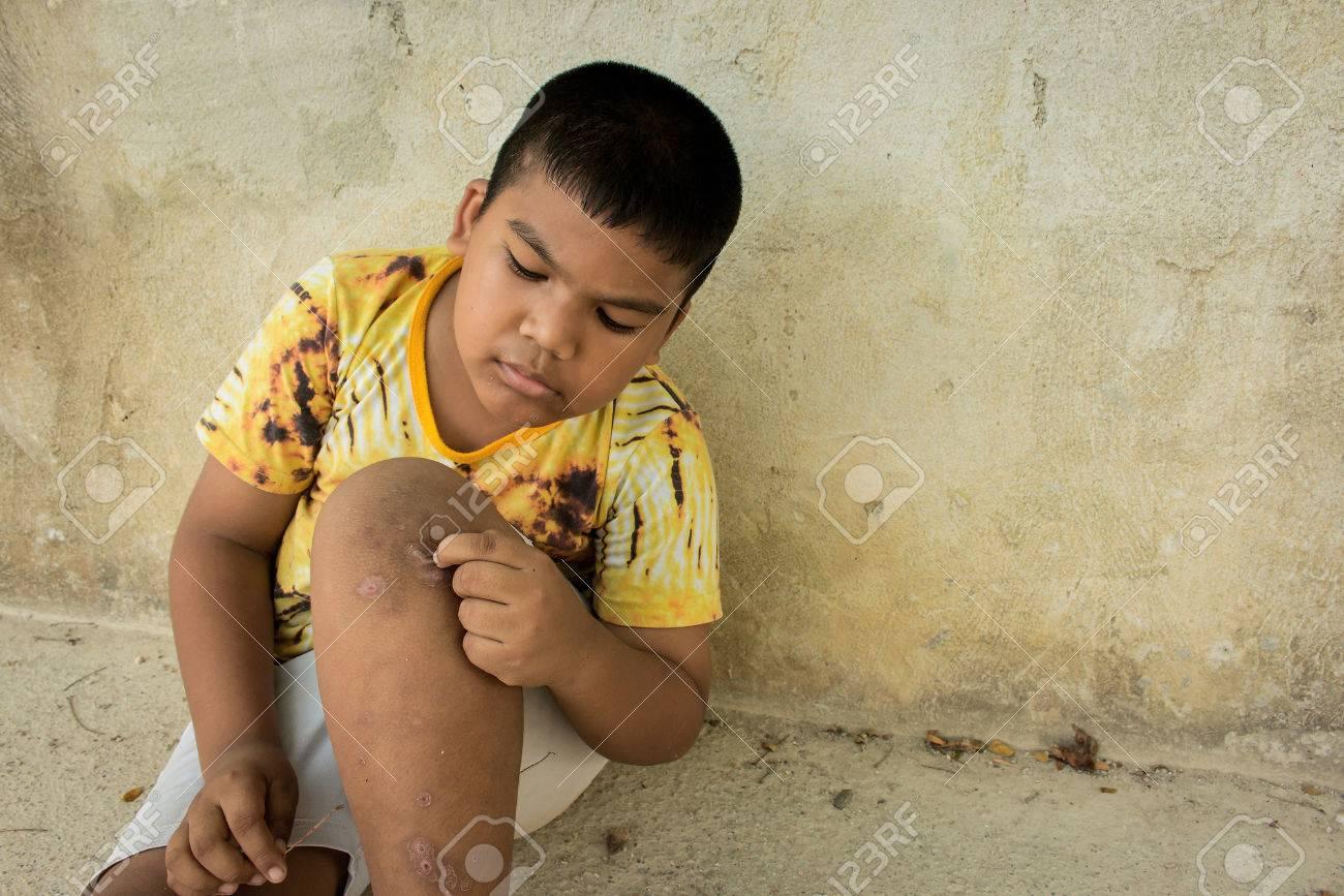 Petit garçon gratter les cloques tavelure sur la jambe