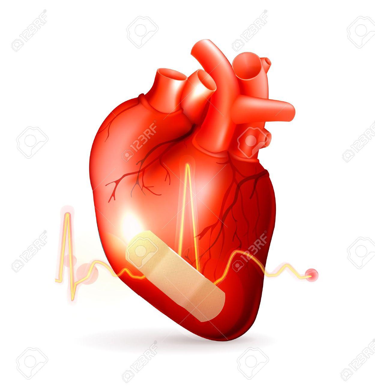 Damaged heart Stock Vector - 13833819