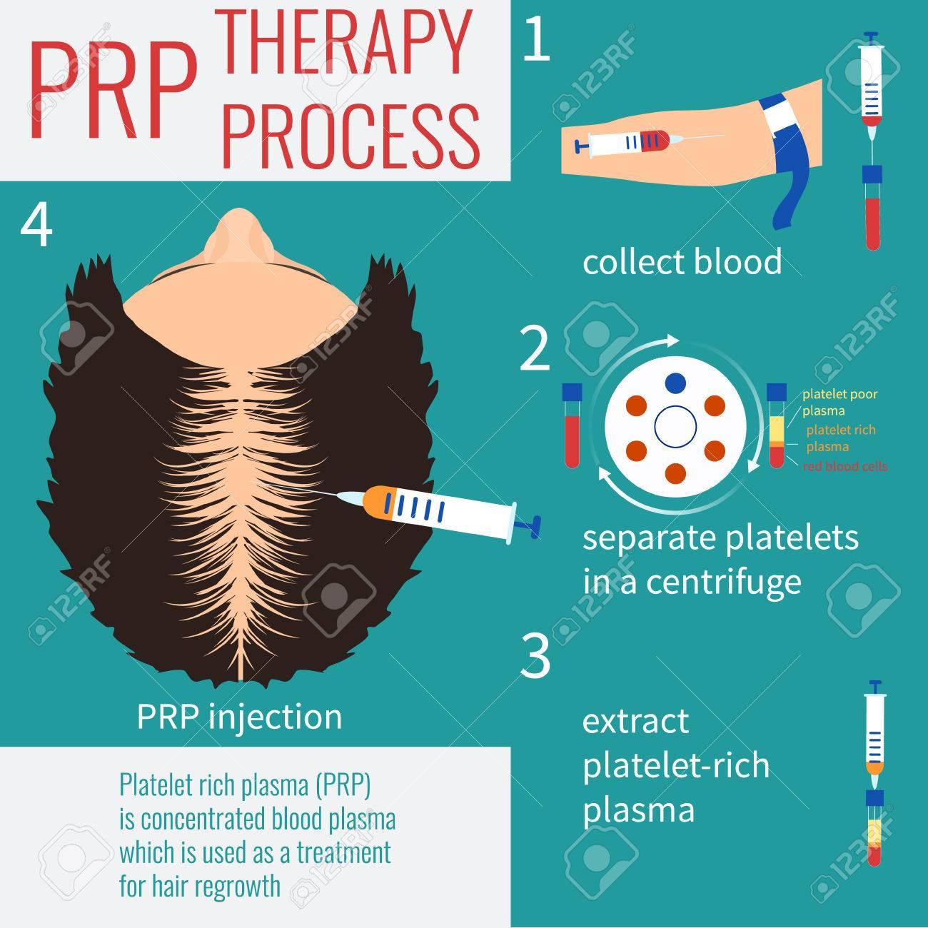 El trasplante de cabello. Inyección de plasma rico en plaquetas. proceso de  la terapia PRP. tratamiento de pérdida 166857824a10