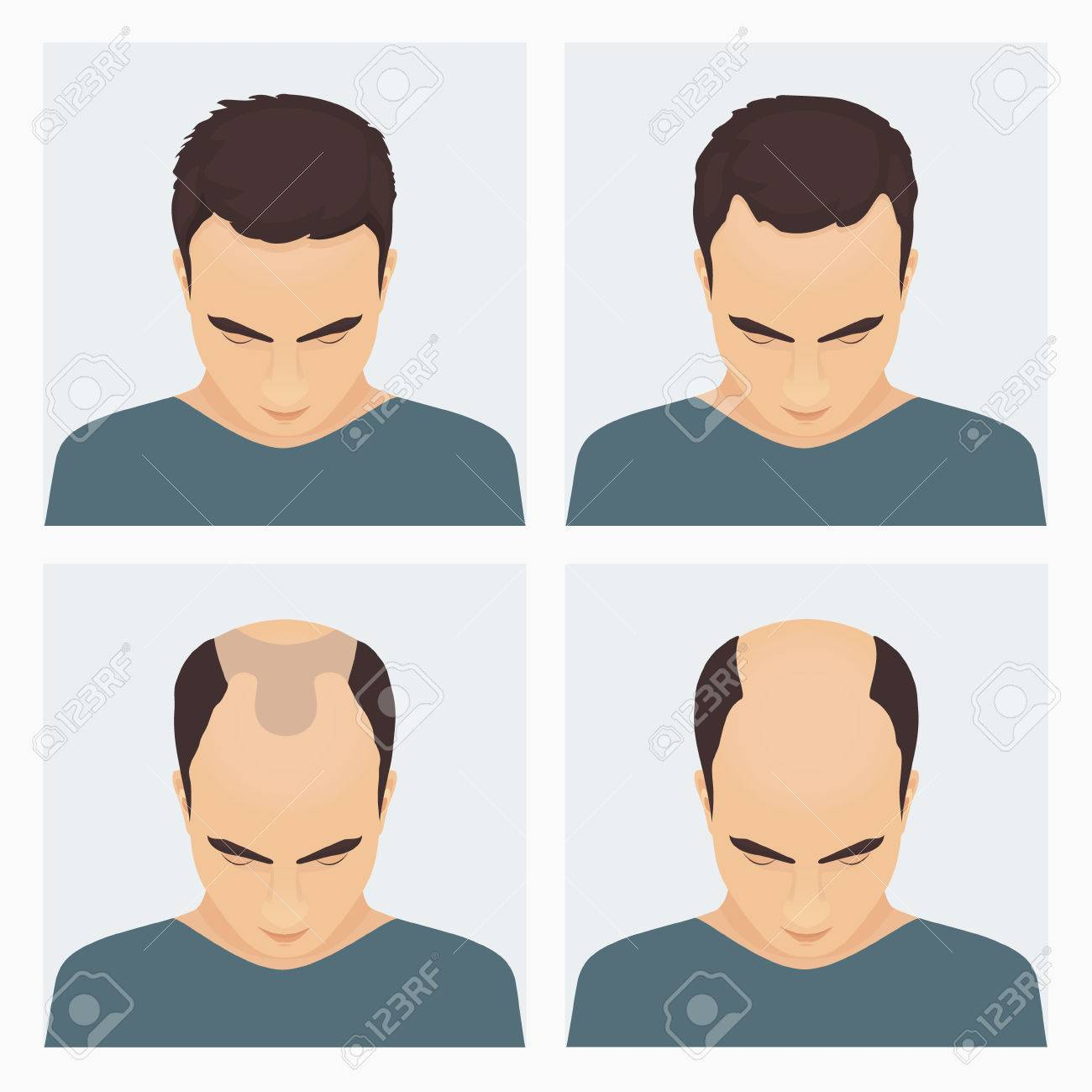 Image result for images of male pattern baldness
