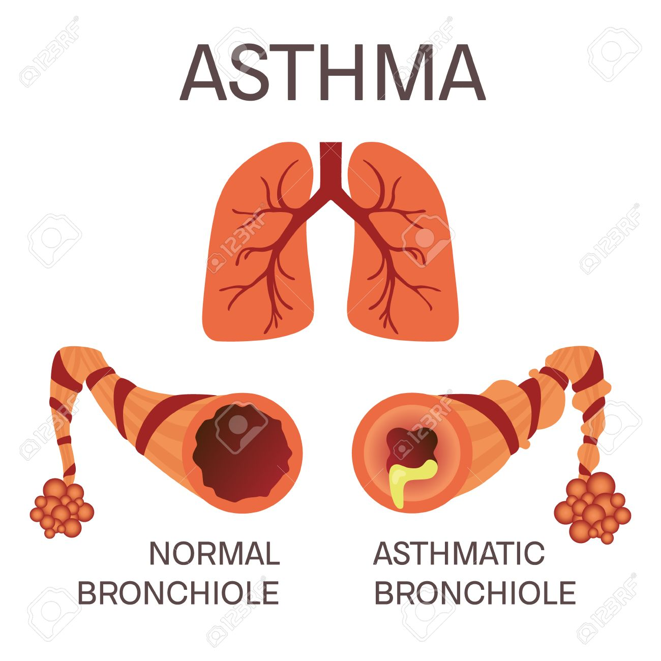 Normal And Asthmatic Bronchioles On White Background. Asthma ...