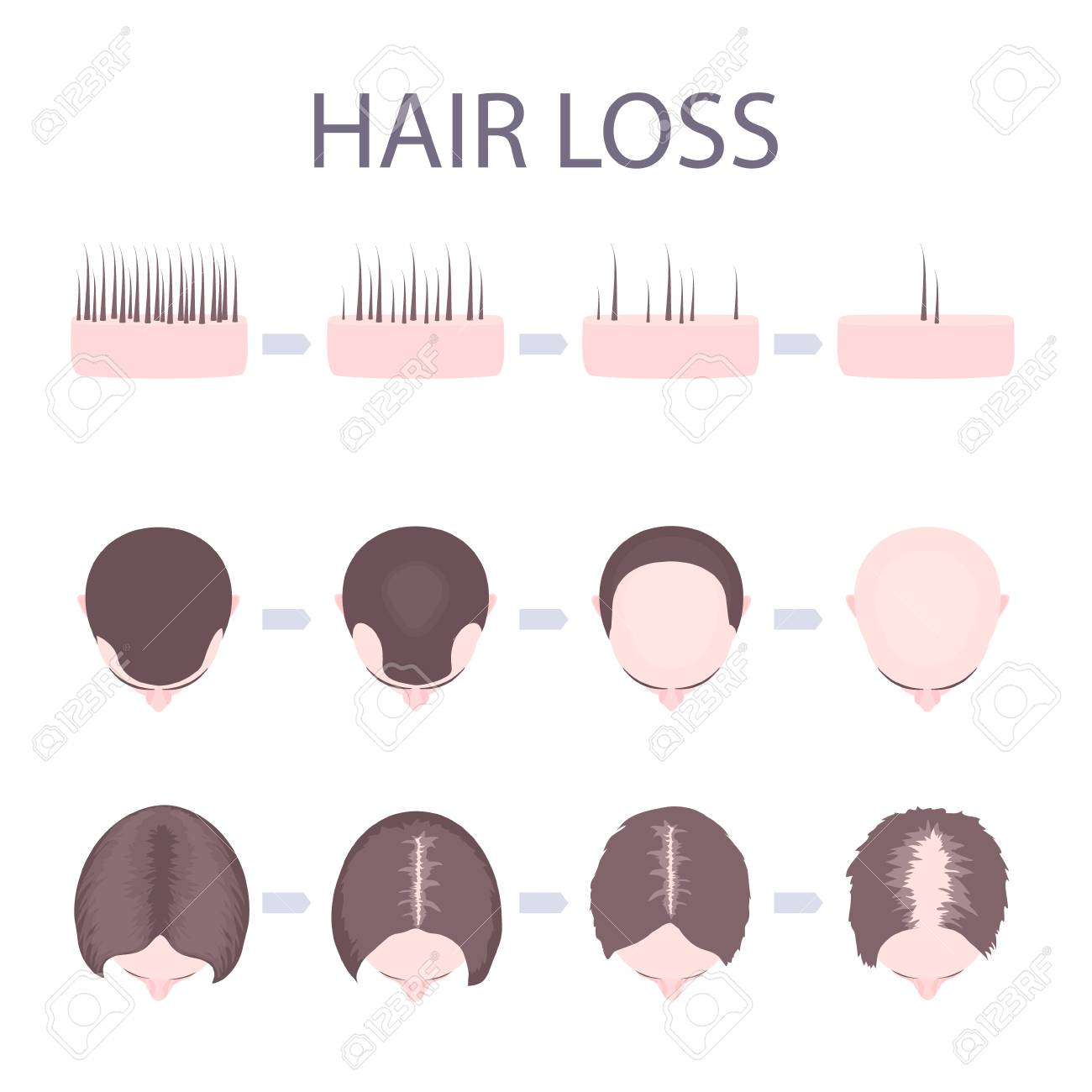 Male and female pattern hair loss set. Stages of baldness in men and women. Number of follicles on scalp in each step. Alopecia infographic medical vector template for clinics and diagnostics centres. - 95514985
