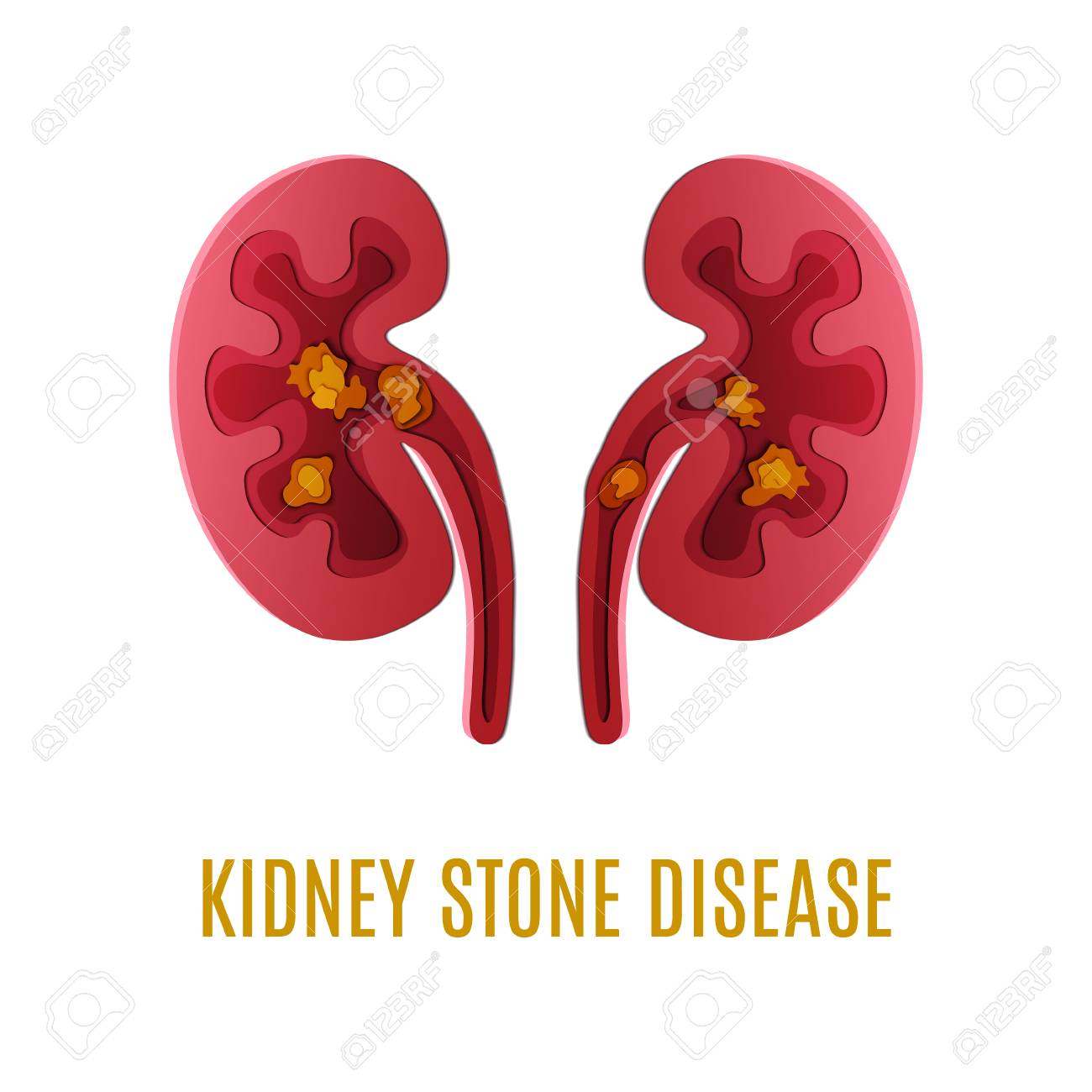 Kidney stone disease awareness poster with kidneys made in 3d kidney stone disease awareness poster with kidneys made in 3d paper cut craft style on white publicscrutiny Images