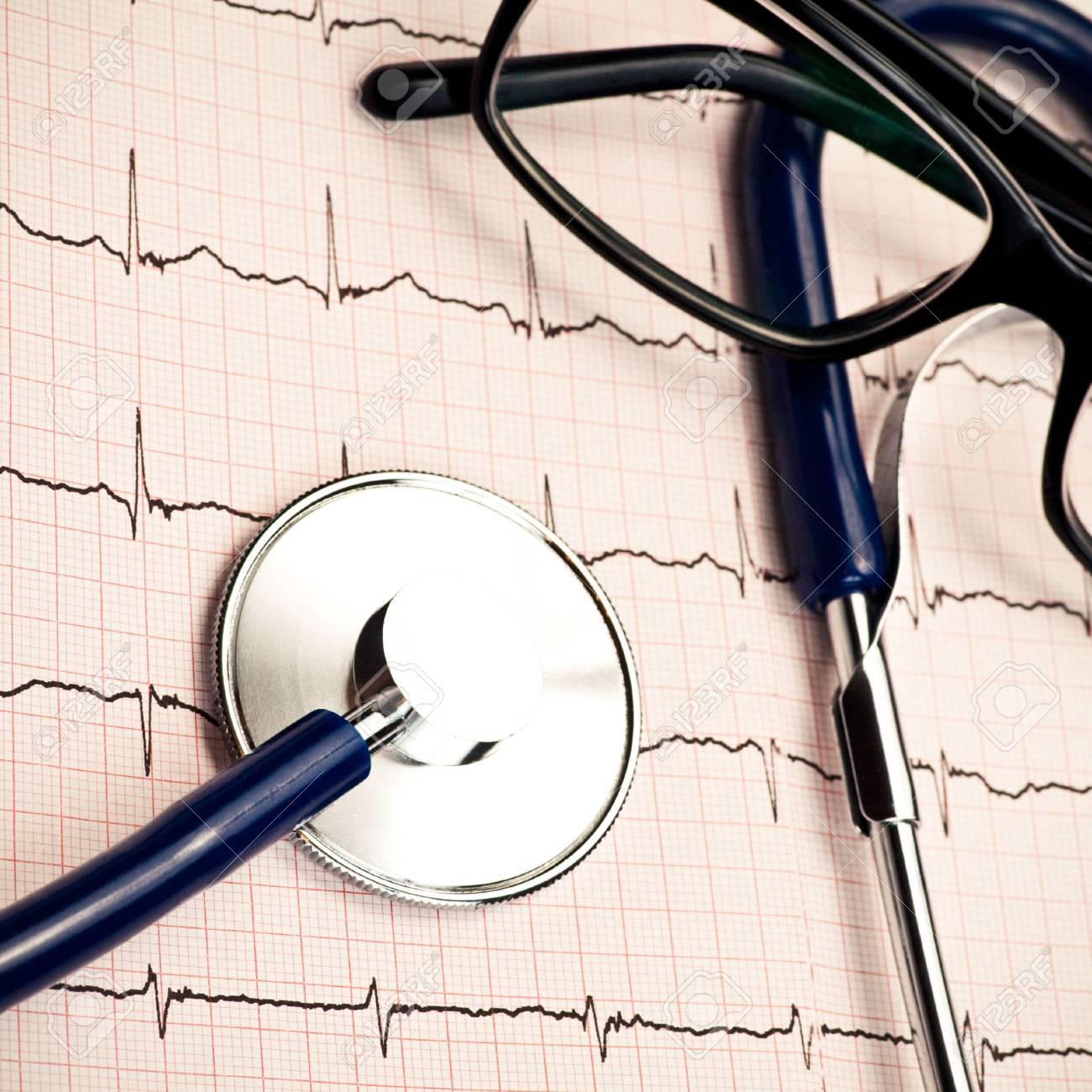 Stethoscope and glasses lying on ECG diagram Stock Photo - 5277296