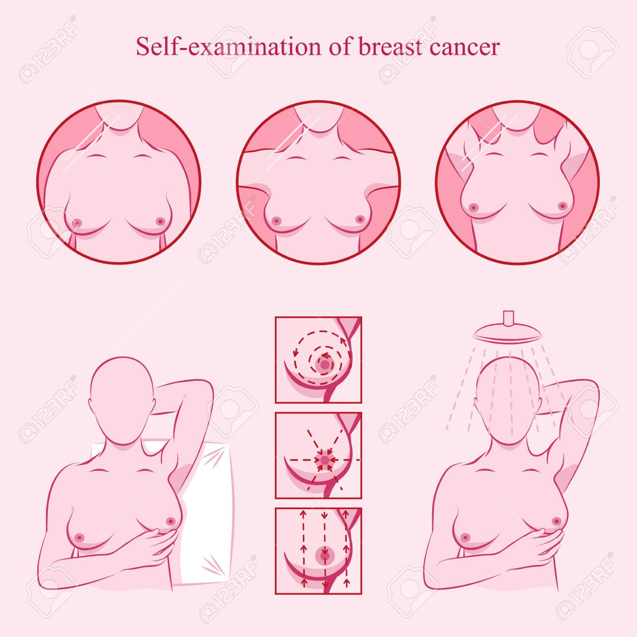 Self Examination Of Breast Cancer. Medicine, Pathology, Anatomy ...