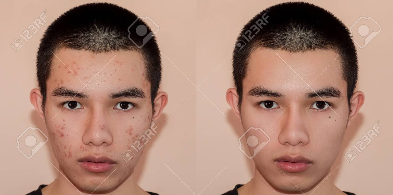 Young man with before and after treatment from acne and pimple, Before and after of face skin treat by scars and wrinkle by acne removal. Spots skin by acne and Smooth skin by treatment. - 109033672