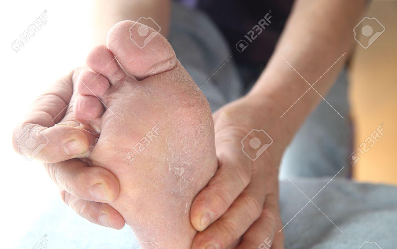 champignon peau pied
