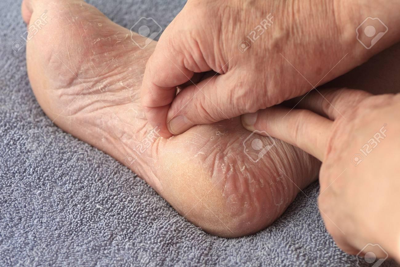 Un homme éplucher ses athlètes pied peau sèche
