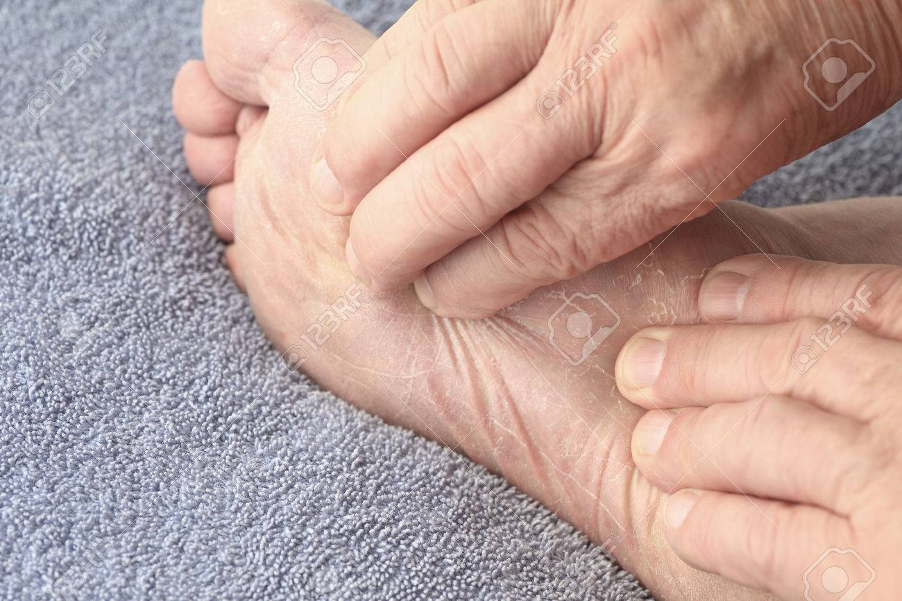 Un homme âgé vérifie la peau écaillée sec de pied d'athlète sous sa seule.