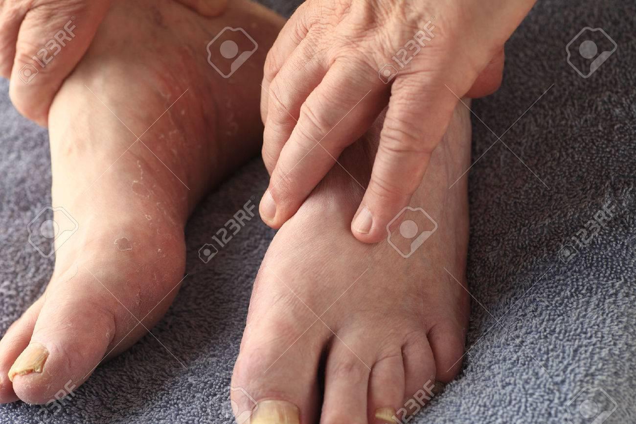 Les mains d'un homme sur ses pieds, dont l'un a la fois champignon de l'ongle et la peau sèche et une desquamation de pied d'athlète