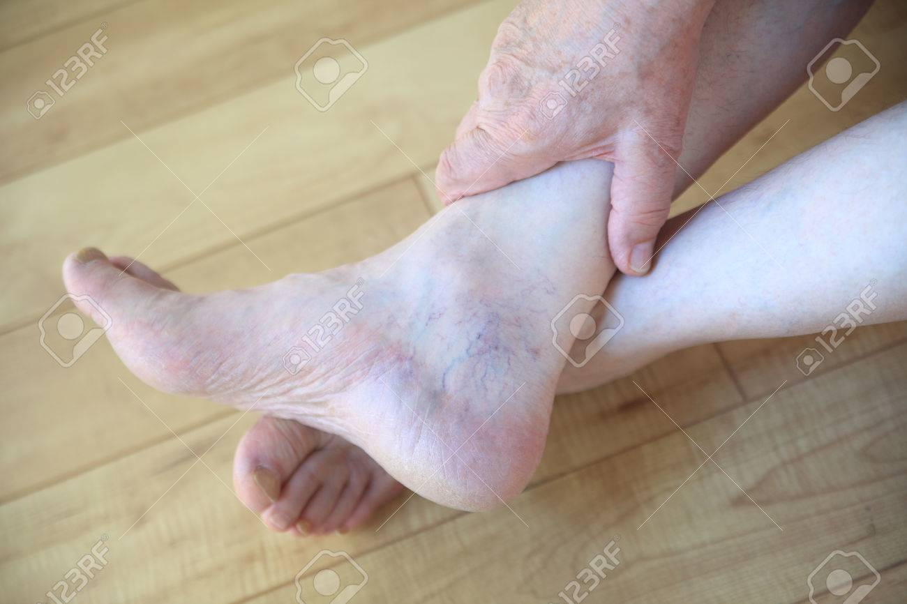 An Older Man With Prominent Veins On His Foot Stock Photo Picture