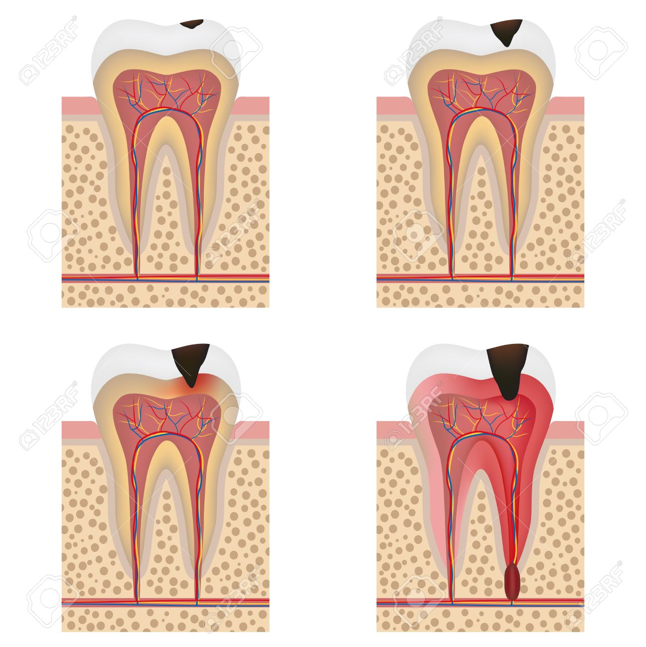 Stages of tooth decay illustration  Development of dental caries