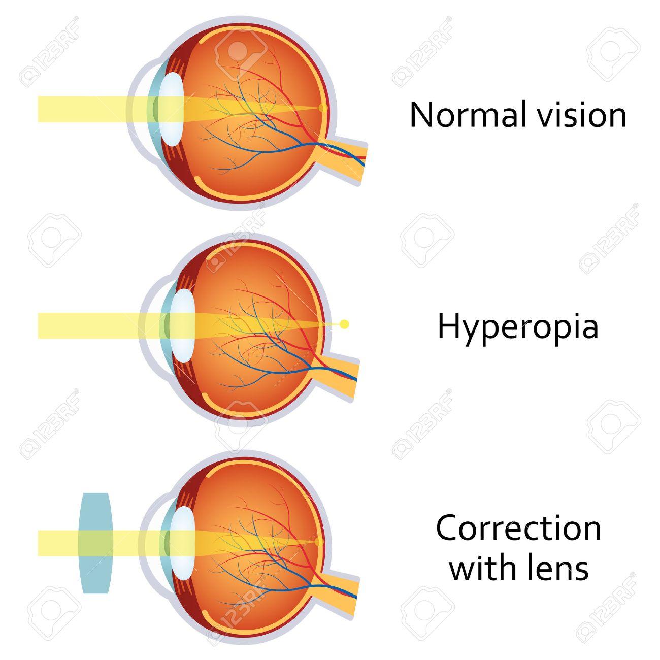 Hova lát jól a rövid- és a távollátó? - Éles látás Myopia és hyperopia mínusz plusz