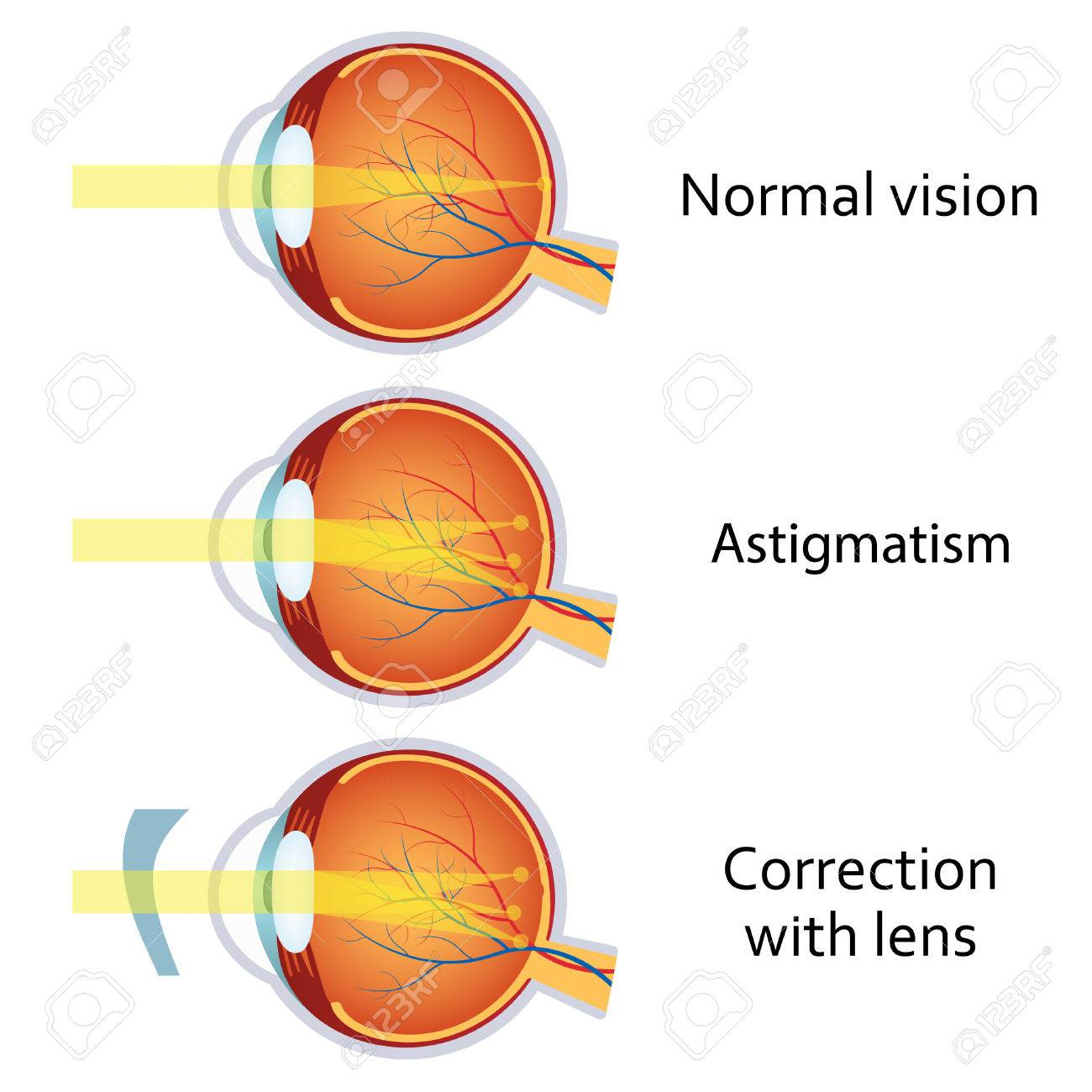 Eye Lens Diagram Astigmatism - House Wiring Diagram Symbols •