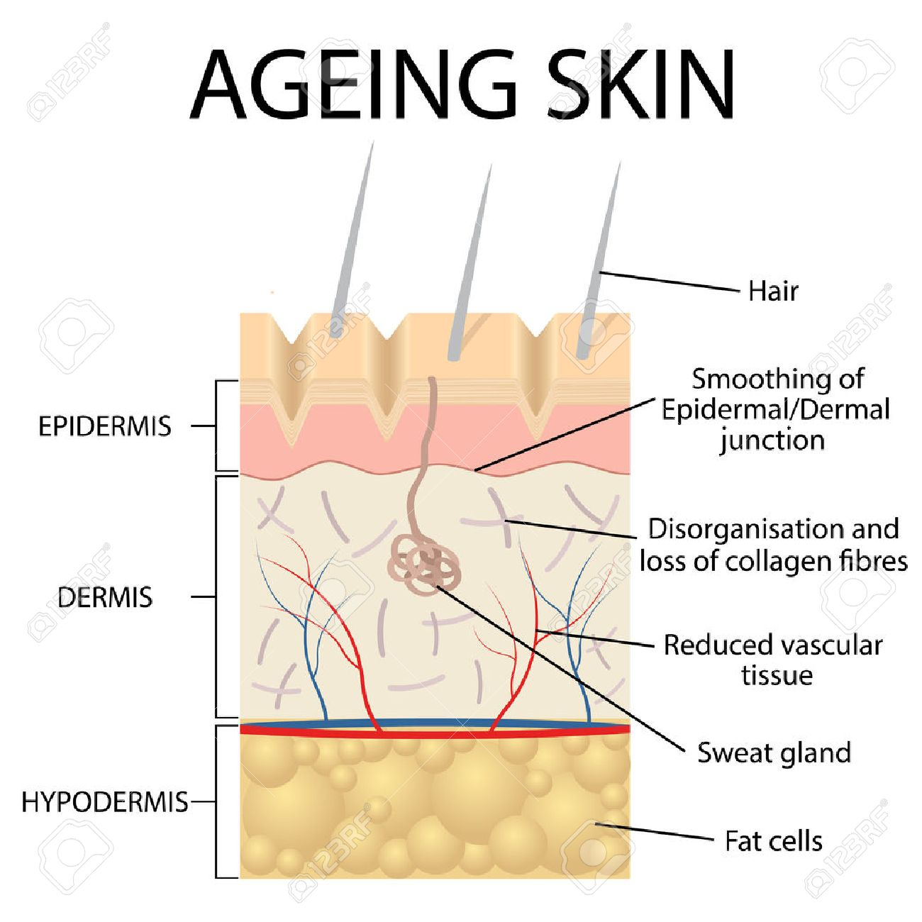 Old Skin Anatomy Characterized By Presence Of Age Spots And Wrinkles ...
