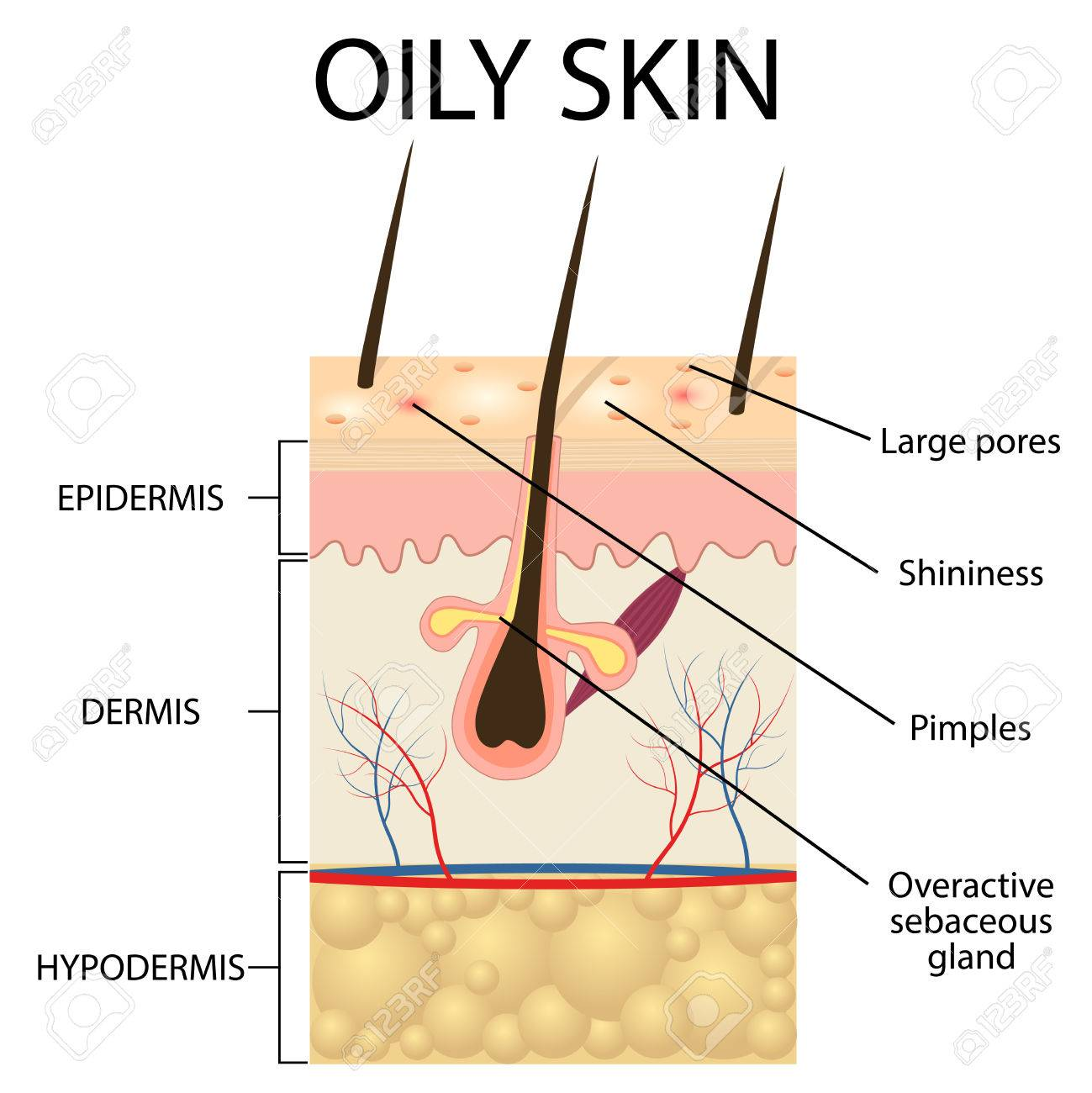 Illustration Of The Layers Of Oily Skin On The White Background
