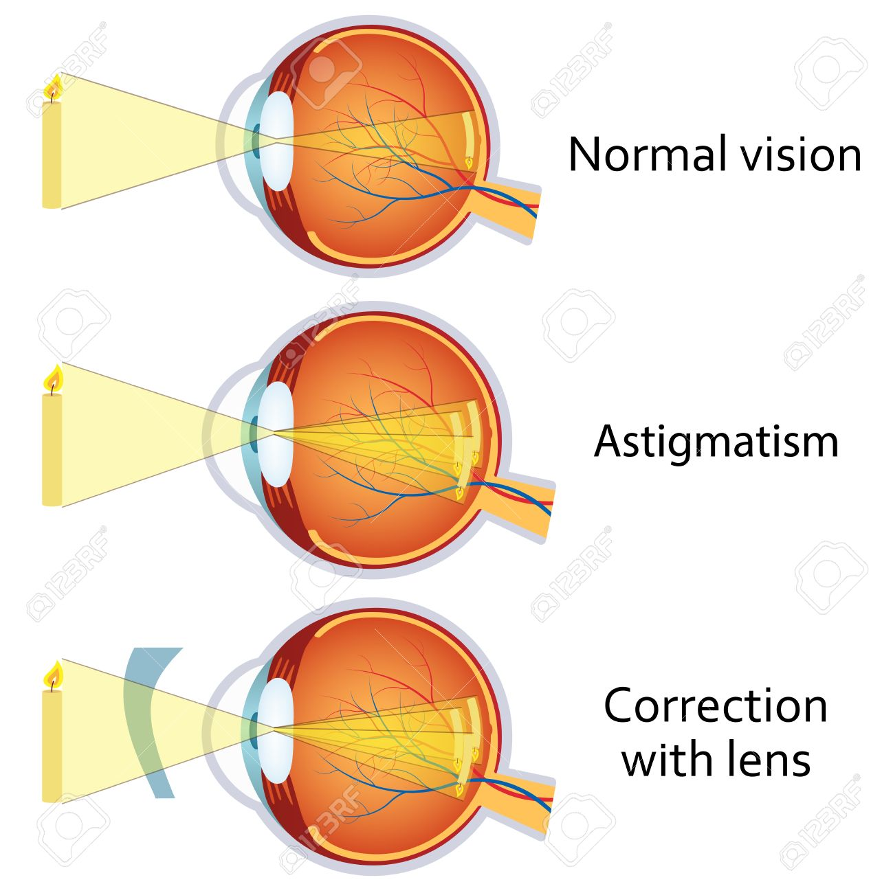 Astigmatism Corrected By A Cylindrical Lens Eyesight Problem