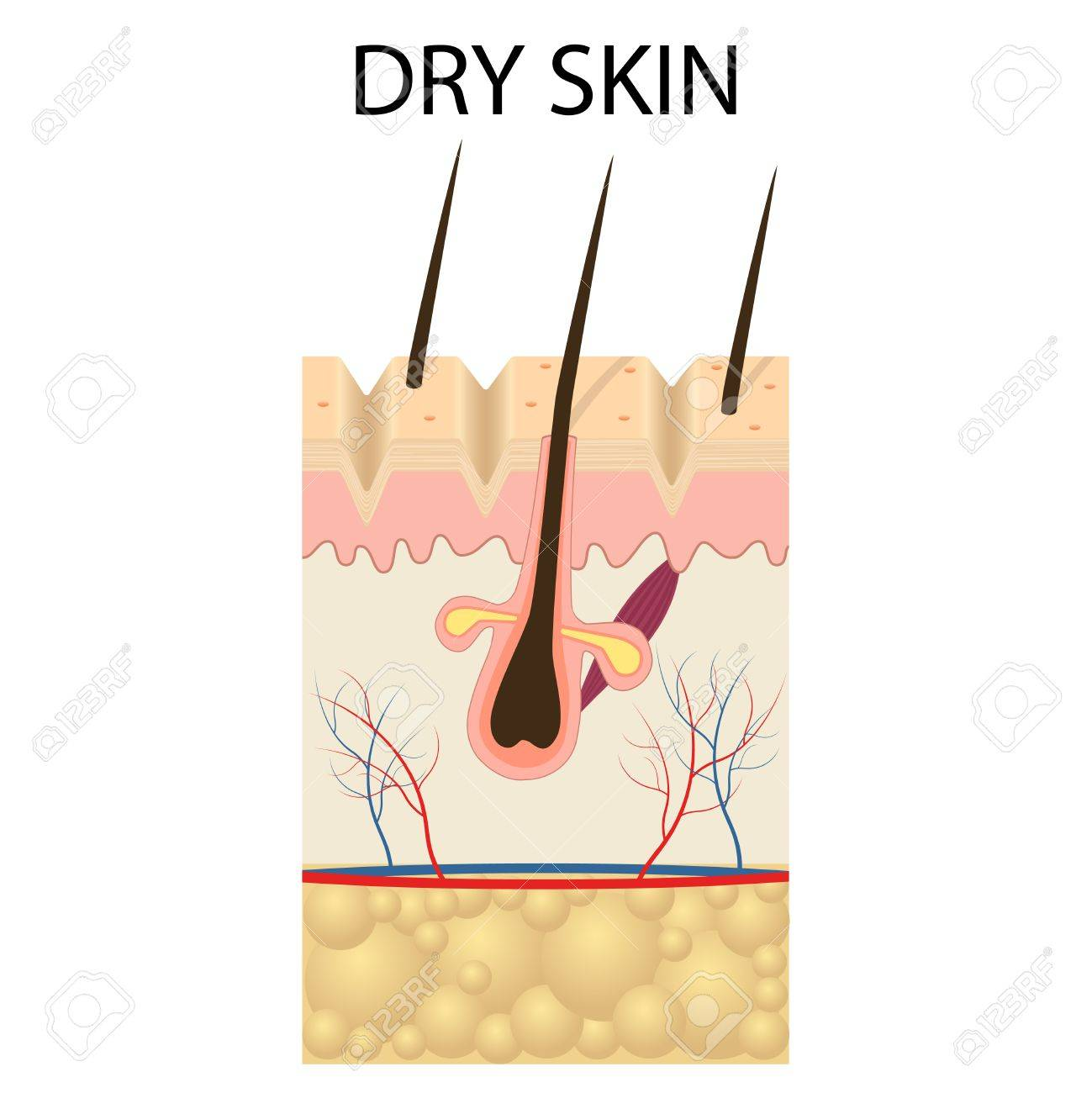 Illustration Of The Layers Of Dry Skin On The White Background
