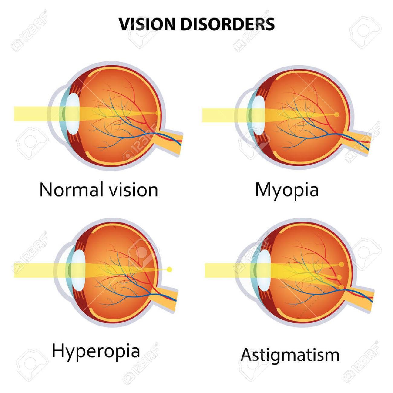 myopia, de hyperopia is)