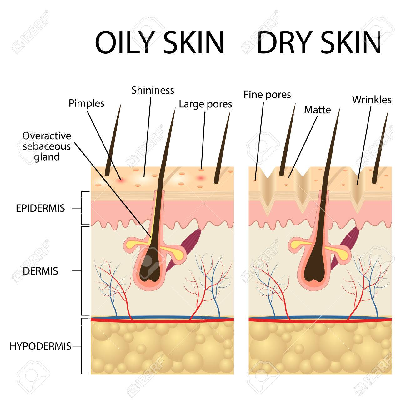 human skin types and conditions. dry and oily. a diagrammatic.. royalty  free cliparts, vectors, and stock illustration. image 74500220.  123rf.com