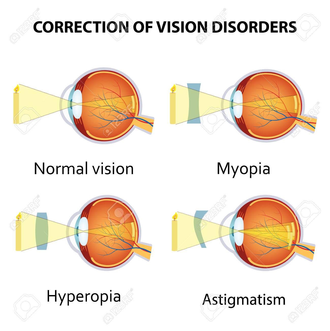 Banque d images - Correction de divers troubles de la vision de l oeil par  la lentille. Hypermétropie, la myopie et l astigmatisme. 9384cff7acae