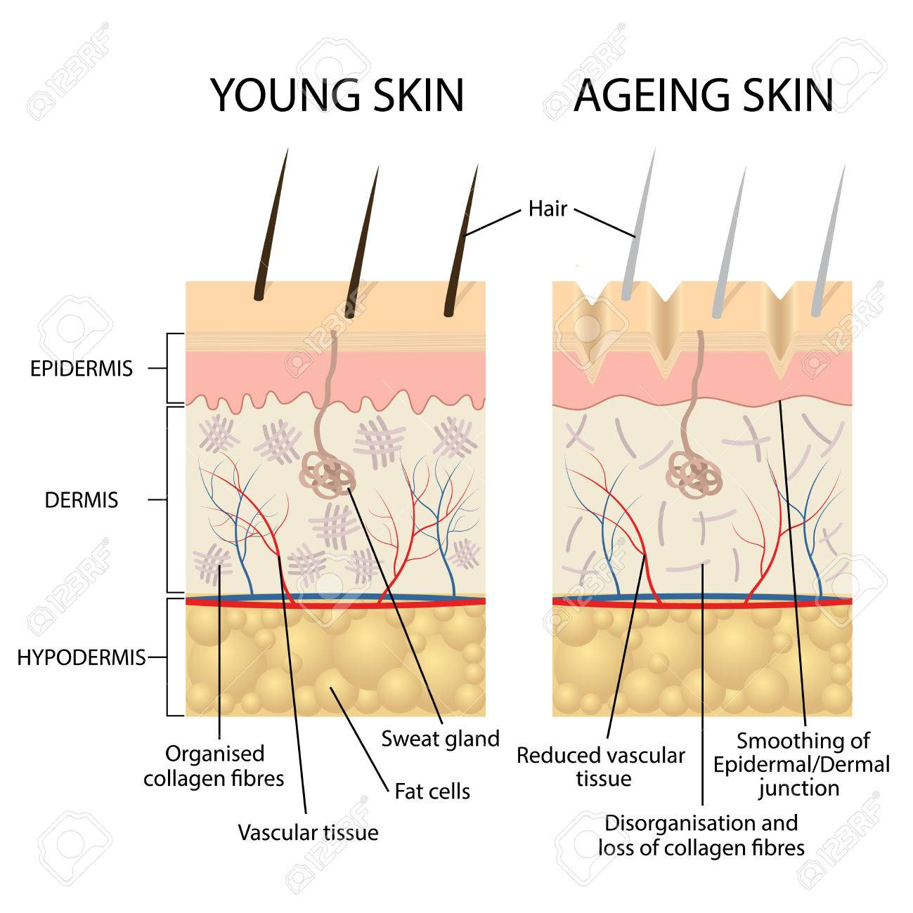 Young Healthy Skin And Older Skin Comparison Skin Layers And