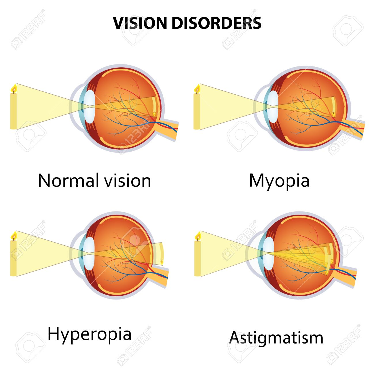 23c1a54948d4 Common Vision Disorders. Astigmatism