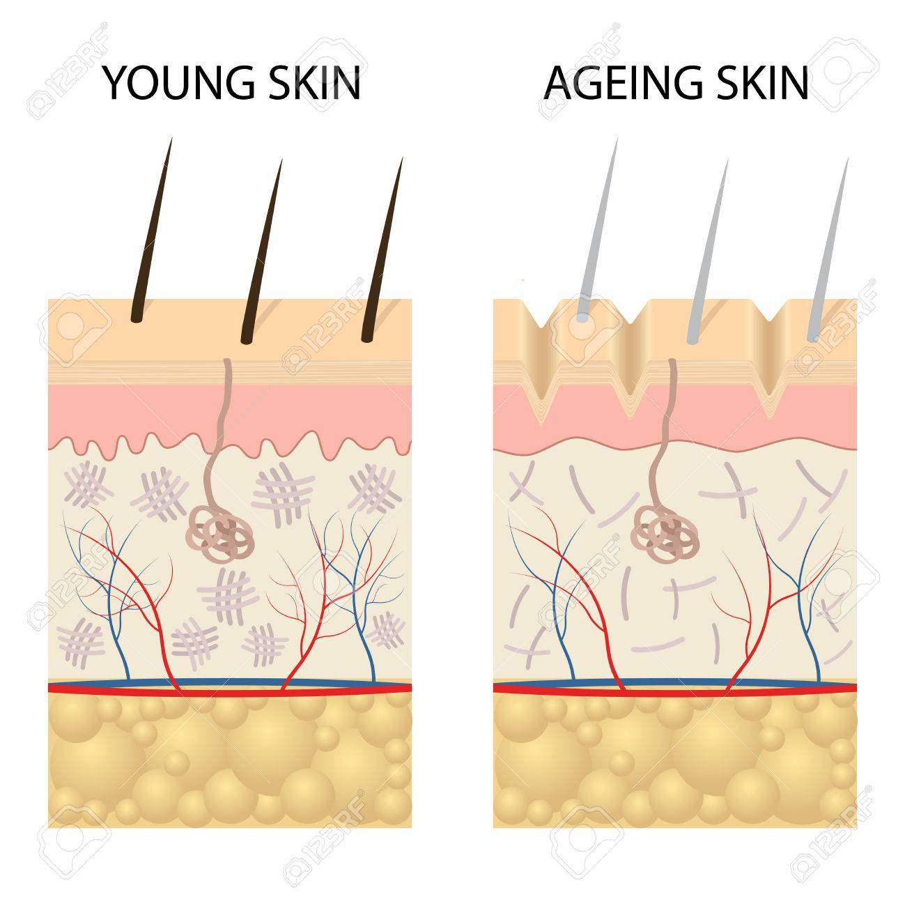 Young healthy skin and older skin comparison skin layers and young healthy skin and older skin comparison skin layers and wrinkles diagram stock vector pooptronica Image collections