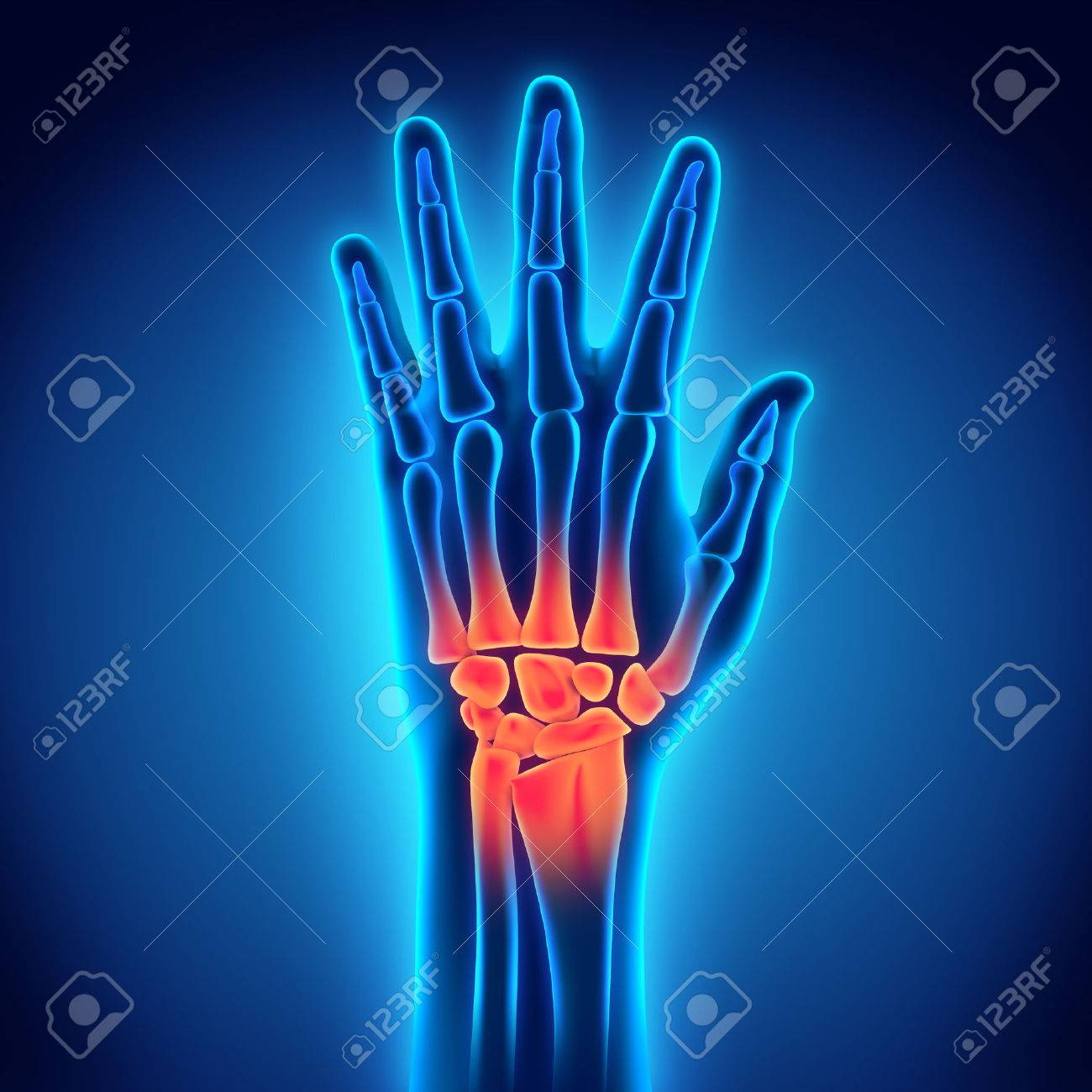 Human Hand Anatomy Illustration Stock Photo, Picture And Royalty ...