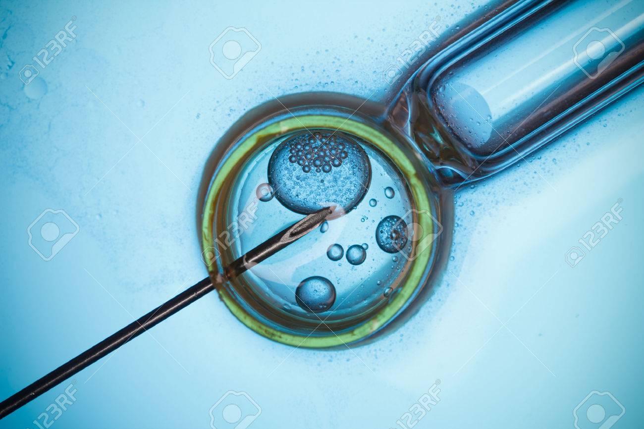 in vitro befruchtung