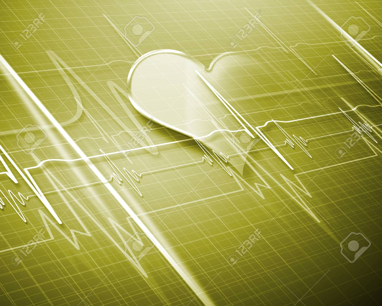 Image of heart beat picture on a colour background Stock Photo - 14911707