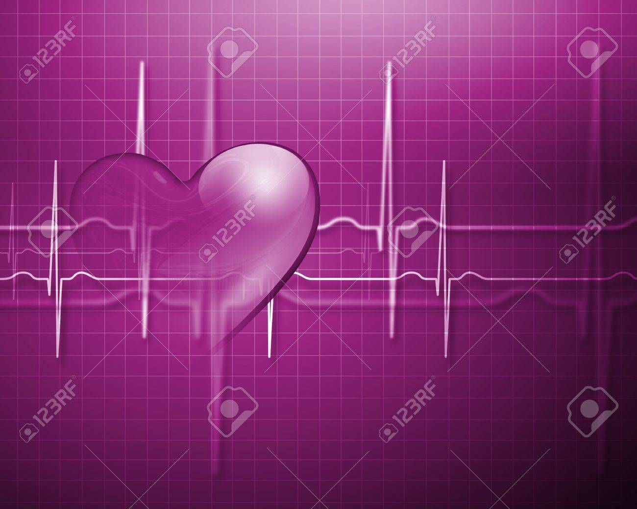 Image of heart beat picture on a colour background Stock Photo - 15220966