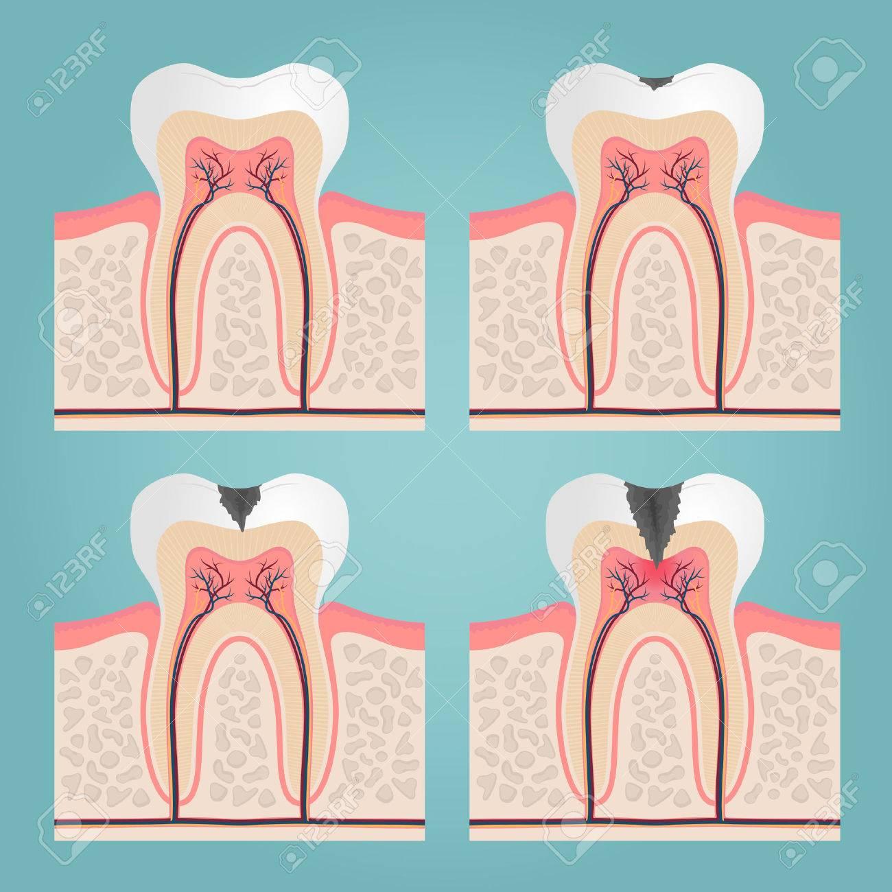 Zahnanatomie Und Schäden, Schneiden Zähne In Der Zahnfleisch Vektor ...