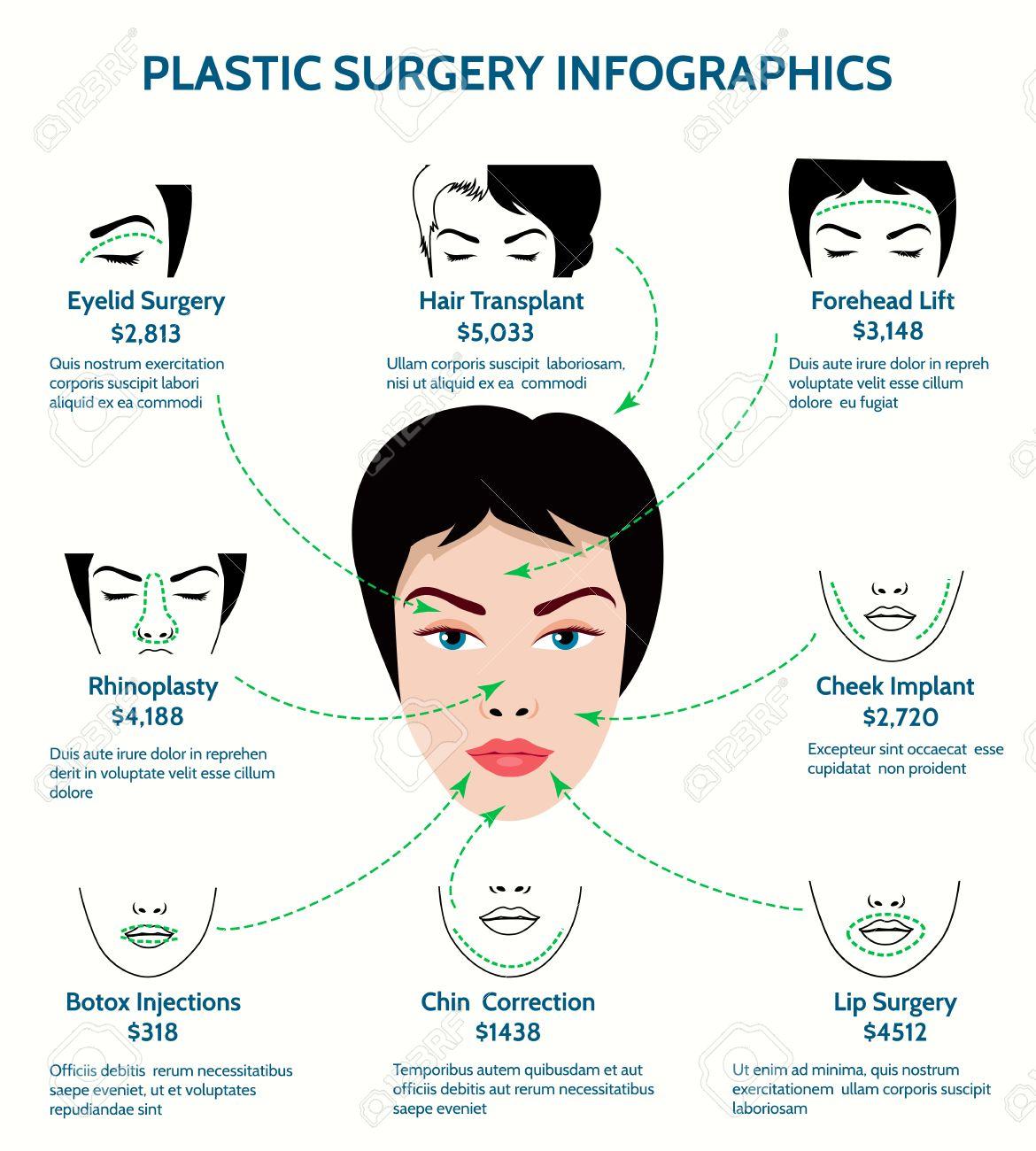 Infograf a cirug a pl stica medicina y barbilla la frente y la mejilla phinoplasty y