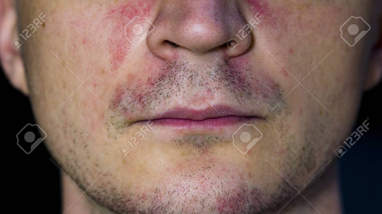 Perioral dermatitis - skin disease on the face