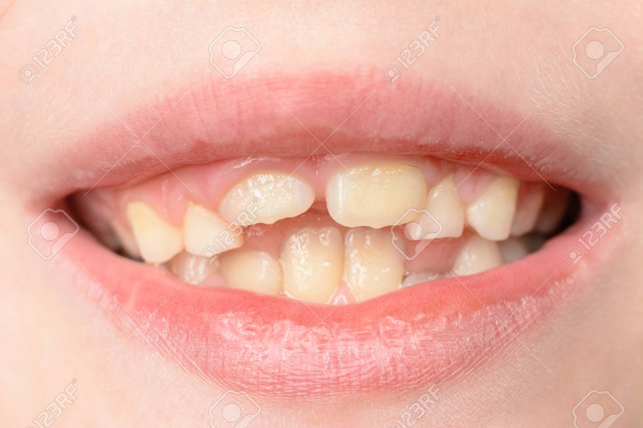 Close-up of a small boy with curved teeth smiling 2019 - 125726639