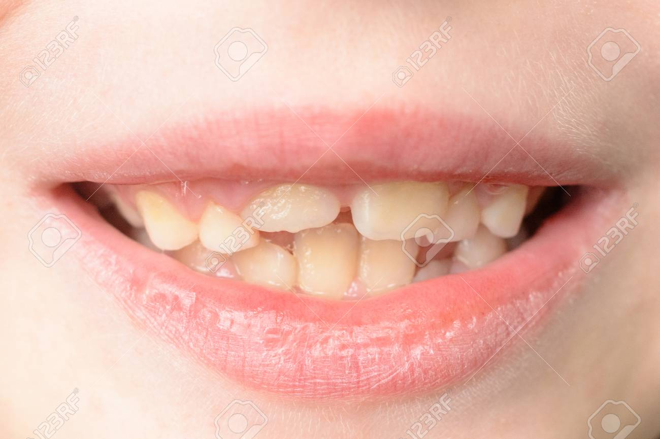 Close-up of a small boy with curved teeth smiling 2019 - 125726640
